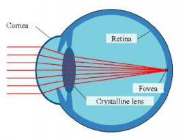 עדשות סקלרליות - שבירת האור בעין
