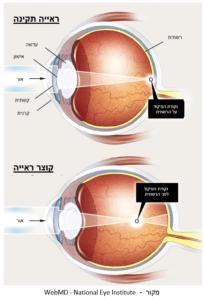 ראייה תקינה לעומת קוצר ראייה